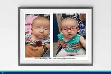 A four-month old baby girl had her eyesight saved at Hadassah Hospital!